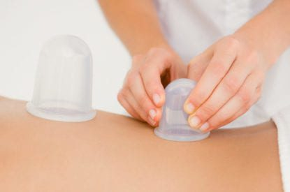 Woman with vacuum cups on her back at the health spa