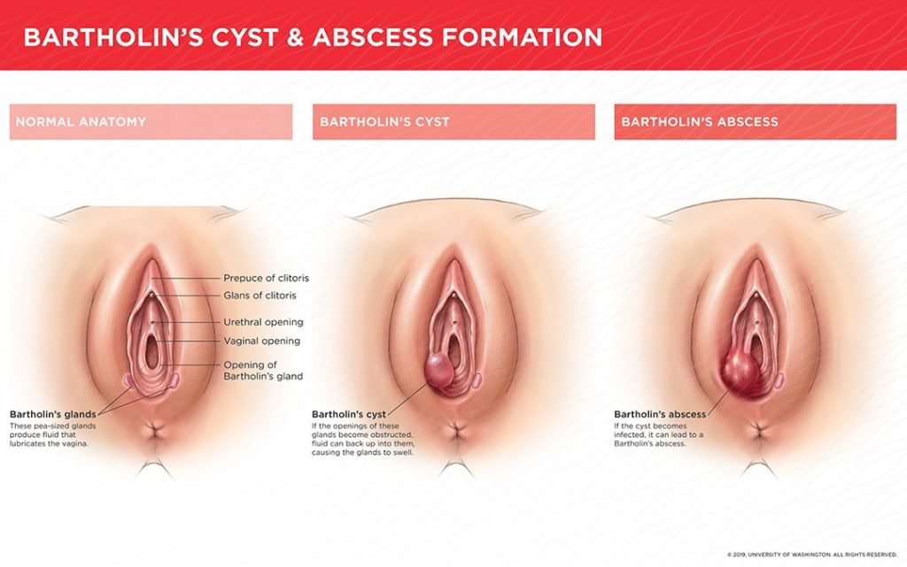 Bartholin's cyst, gynaecological problems, women's health, vaginal pain, vaginal cyst, painful sex, painful urination, pain with intercourse,